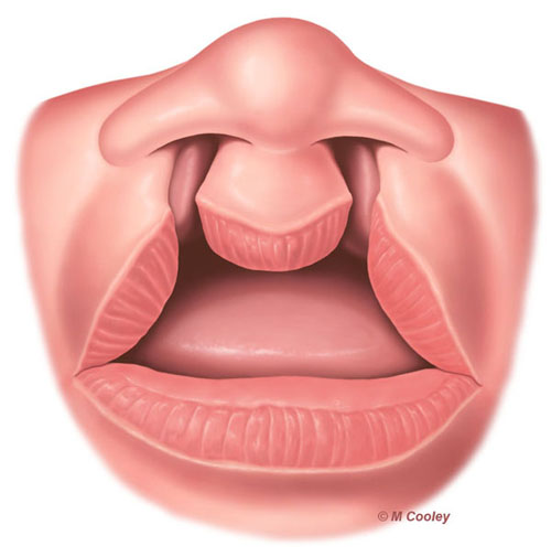 Michael A. Cooley, Bilateral Cleft Lip 1a, 2011, Digital, Publication, Nationwide Children's Hospital. This is one in a series of illustrations depicting diagnosis and treatment of a bilateral cleft lip.