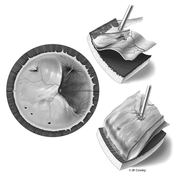 Michael A. Cooley, Detached Retina, 2004, Digital Tone. This illustration depicts a detached retina and treatment via vitrectomy. These illustrations were create for patient education for Dr. Rex Hawkins of Retina Vitreous Associates in Houston Texas.