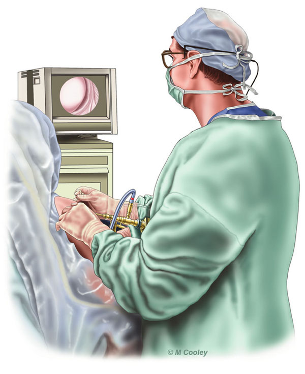 Michael A. Cooley, Orthopedic Surgeon, 2002, Digital Color. This illustration depicts an Orthopedic Surgeon working on the right glenohumeral joint (shoulder) of his patient.